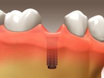 implant_restoration_02