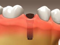 implant_restoration_03