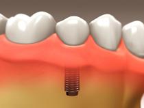 implant_restoration_04