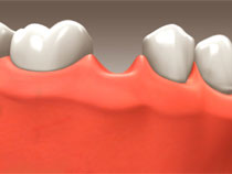 implant_restoration_06