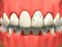 porcelain_veneers_01