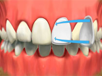 porcelain_veneers_02
