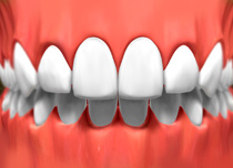porcelain_veneers_03