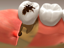 root_canal_01