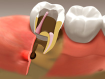 root_canal_03