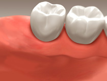 root_canal_05